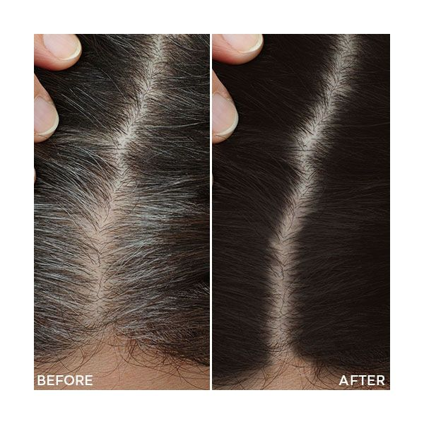 Toppik Root Touch-Up Spray Castano Scuro - 50 ml